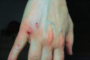 verletzung-bissverletzung-durch-kaninchen-oggy2