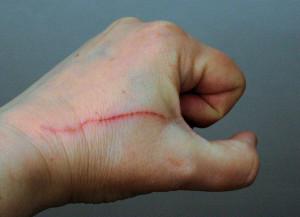 verletzung-kratzverletzung-durch-krallenhieb